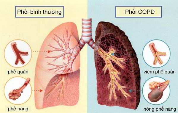 Bệnh khí phế thũng: Nguyên nhân & cách điều trị