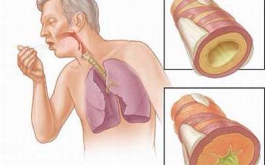 Cách xử lý ho kèm theo đờm kéo dài - Triệu chứng nhiều bệnh